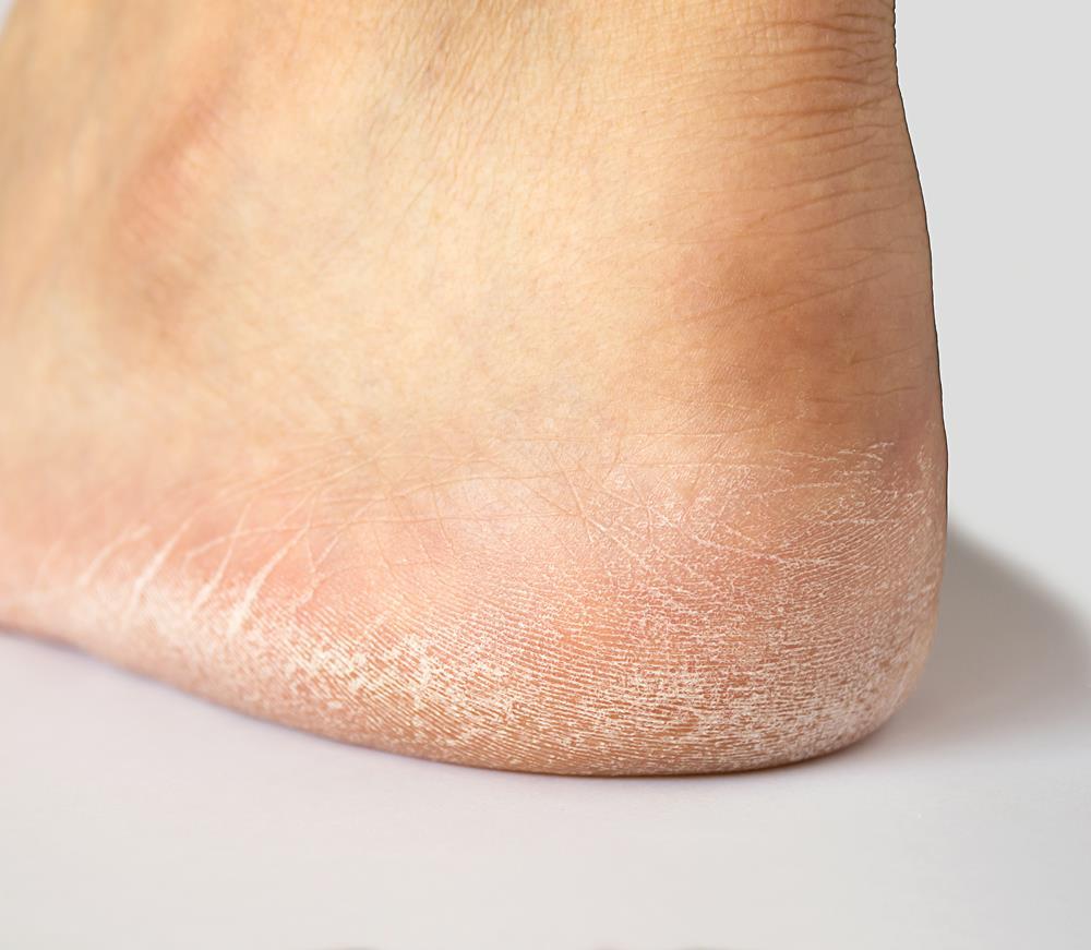 Flat Feet Treatments in Scottsdale