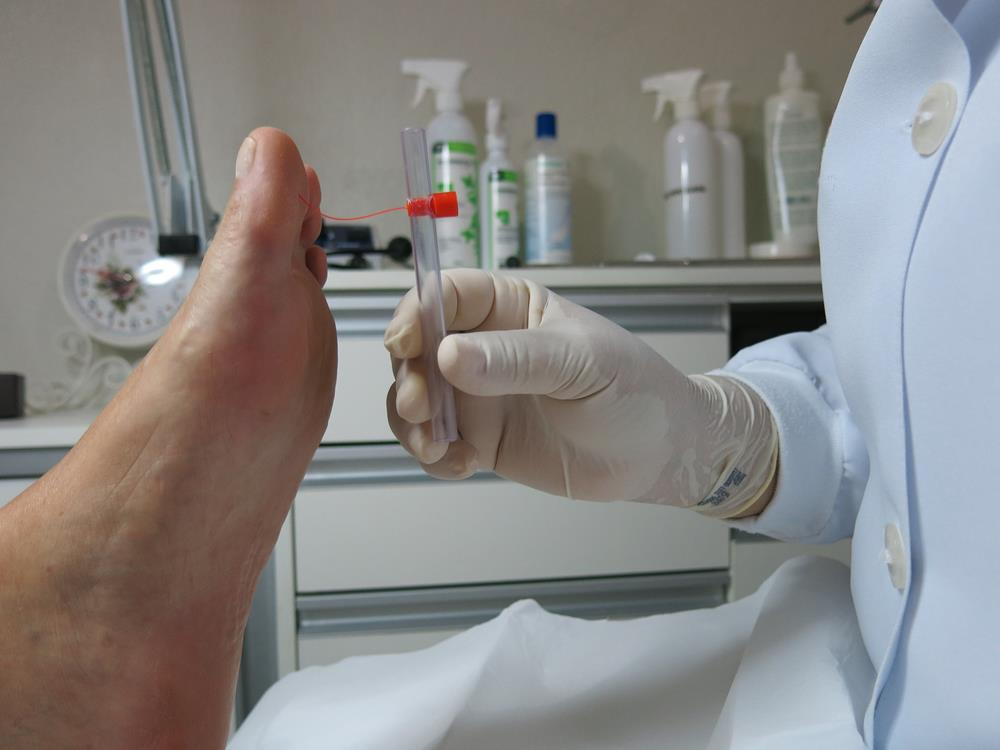 Neuromas Treatments in Scottsdale