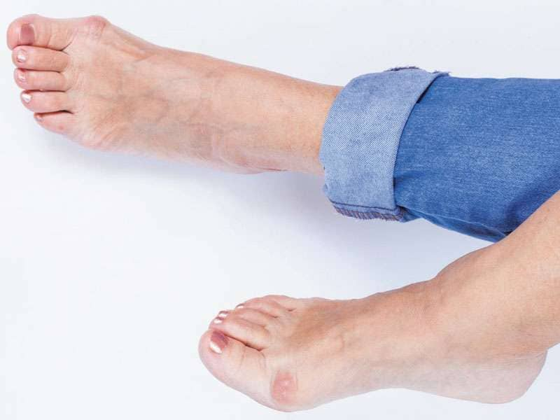 Bunions Treatments in Scottsdale