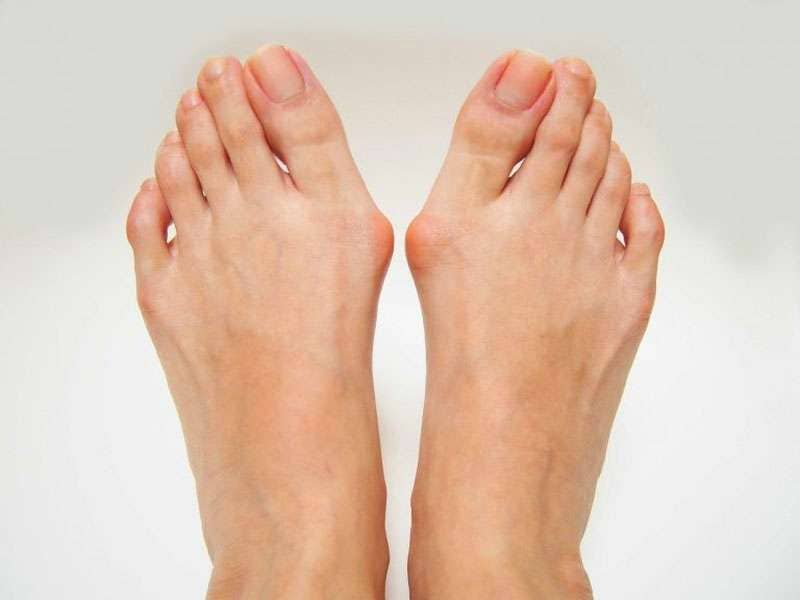 Bunions Treatment In Scottsdale