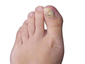 Fungus Toenails Treatment in Scottsdale