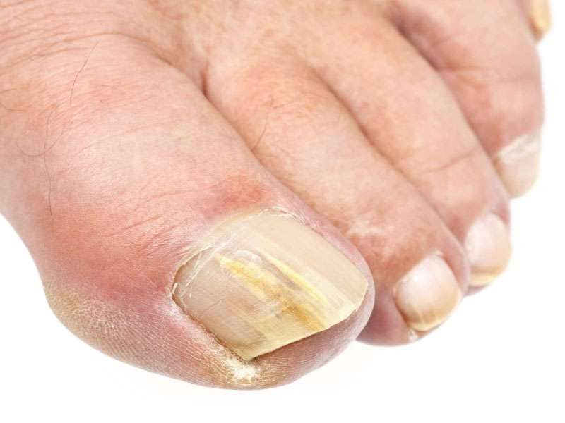 Fungus Toenails Treatments in Scottsale