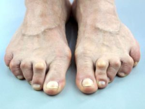 Hammertoe treatment in Scottsdale